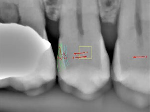 The Hidden Value of Digital Radiography for Caries Detection