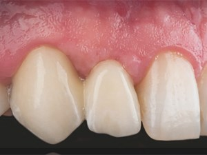 Papilla Regeneration in Patients with Gummy Smile