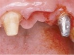The Central-Lateral Replacement Dilemma in Esthetic Implant Dentistry: Clinical Alternatives & Case Management