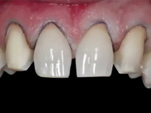 Minimally Invasive Cosmetic Restorative Dentistry with Minimal Prep Veneers: A Case Report