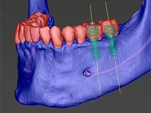 Bone Augmentation and Implant Planning in a 3-D CBCT World