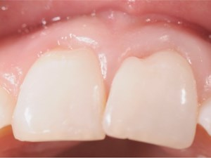 Correcting Enamel Tooth Deformities that Affect the Smile