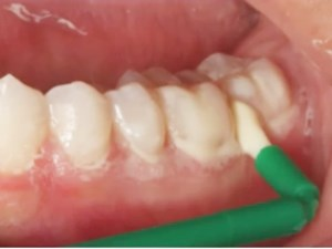 Indications of In-Office Treatments: Topical Fluoride, Varnish, Foam and Gels