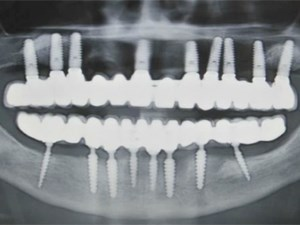 Full Mouth Implant Rehabilitation of a Severe Periodontally Compromised Patient