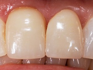 A Restorative Solution to Correcting a Geminated Central Incisor