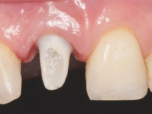 Maximizing Aesthetics on Adjacent Implants and Full Arch Reconstructions