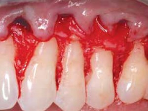 The Use of PerioDerm for Root Coverage and Correction of Insufficiently Attached Gingiva