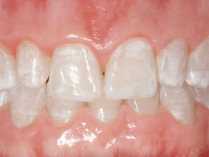 Re-establishing Esthetics of Fluorosis-Stained Teeth Using Enamel Microabrasion and Dental Bleaching Techniques