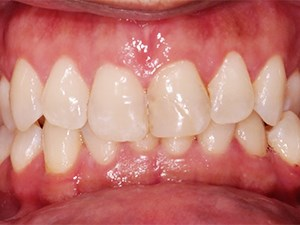 Creative Restorative Correction of a Unilateral Crossbite
