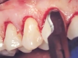 Crown Lengthening in Comprehensive Esthetic Therapy: The Complete Surgical Video A to Z