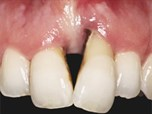 Papilla Management in a Severe Periodontal and Cosmetic Deformity: Combining Veneer into Full Graft (ViFG) and Veneer into Split Graft (ViSG)