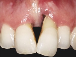 Papilla Management in a Severe Periodontal and Cosmetic Deformity; The Wedge Buccal Gingival Margin Graft
