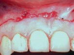 Mucosal Coronally Positioned Flap for the Management of Excessive Gingival Display in the Presence of Hypermobility of the Upper Lip and Vertical Maxillary Excess: A Case Report