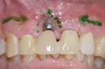 Implant Complications and Creative Surgical Solutions
