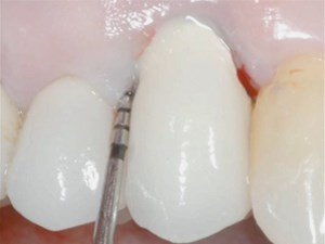 Transitioning of Teeth to Implants: Risk Assessment for Successful Outcome