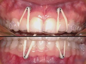 Modern Orthodontic Therapy utilizing TADS and Invisalign