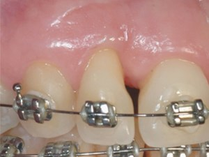 Sequencing of Periodontal Procedures and Orthodontic Treatment