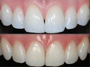 Relationships Between Different Tooth Shapes and Patient's Periodontal Phenotype
