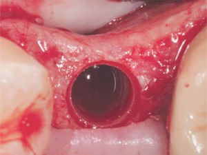 Removal of Failed Dental Implant in a Patient with Peri-Implantitis