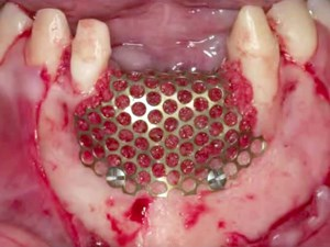 Titanium Mesh and rhBMP-2 in Ridge Augmentation: Options and Limitations