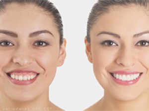 Integrative Management of the Gummy Smile: Lip repositioning, Crown Lengthening & Restorative Nuances