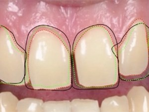 Visual Esthetic Smile Design: Driving the Restorative Plan