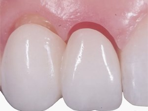 Esthetic Management of Extraction and Pontic Sites - Part 1 of 2