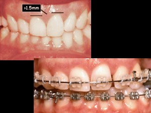 Management of Tooth Wear in the Adult Patient - Part 1