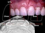 Management of Tooth Wear in the Adult Patient - Part 2
