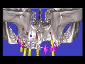 4D Concept Implant Therapy
