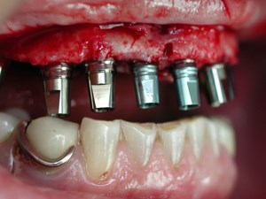 Immediate Loading in Implant Dentistry – Coherent Clinical Application in Everyday Practice