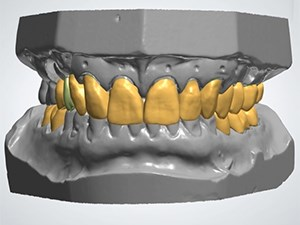 Computer Enhanced Implant Dentistry - Part 1 of 2