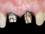 Implants in the Esthetic Zone: A Prosthodontics Approach to a Periodontics Challenge