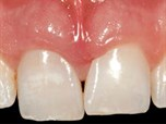 Flapless Postextraction Socket Implant Placement in the Esthetic Zone: Part 1. The Effect of Bone Grafting and/or Provisional Restoration on Facial-Palatal Ridge Dimensional Change