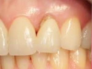 Buccal Plate Regeneration with Immediate Postextraction Implant Placement and Restoration: Case Reports