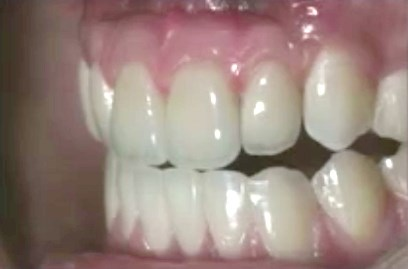 "The Critical ""Pink"" Interface in Esthetic Dentistry—A Cross-Disciplinary Approach: Options, Limitations, and Solutions"