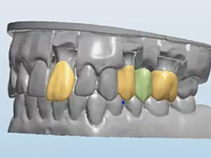 Dental Ceramics: Material Properties and Clinical Applications Part 3 of 3