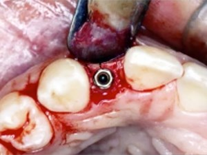 Working With Spaces and Decisions on the Congenitally Missing Lateral Incisor - Part 1 of 2