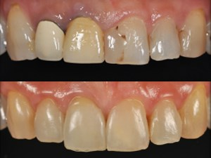 Preparation-less Veneer Technique: Esthetic Rehabilitation for Anterior Teeth