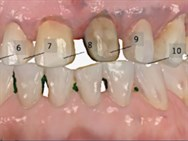 dental companies and products dentalxp