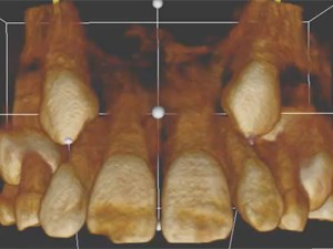 An Orthodontist's Guide to Prescribing Conventional 2D and 3D CBCT Radiographs