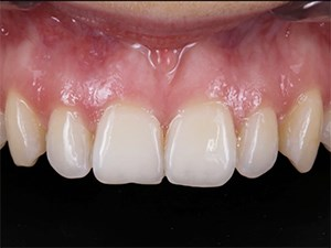 Photo/Video Documentation in Dentistry: The MicroVision Approach