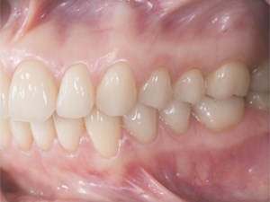 Modern Occlusal Concepts in Esthetic & Implant Dentistry