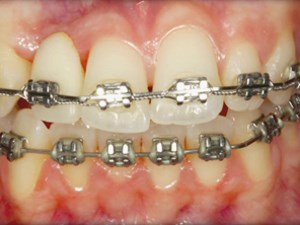Tooth Proportions and Color Management in Modern Cosmetic Dentistry