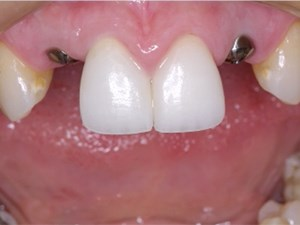 Predictable Implant Aesthetics Utilizing A Custom Fabricated Provisional Abutment & Impression Coping