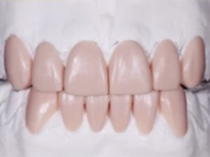 Esthetic Rehabilitation for Severe Worn Dentition