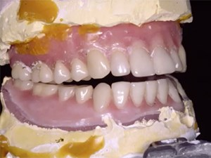 Complete Dentures - A Dying Art? - Part 2 of 2
