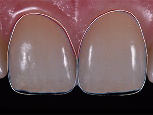 Esthetic Rehabilitation Using Porcelain Veneers - The MicroVision Approach