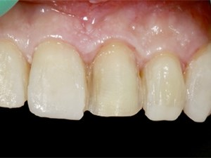 The Key Role of the Provisional Restoration as a Blueprint in Esthetic Tx