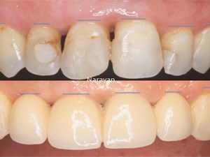 Implants in the Esthetic Zone: Pitfalls & Solutions
